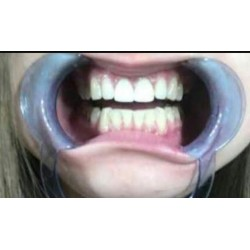 Sülük ağız aparatı